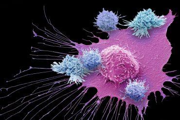 Celulas cancerígenas