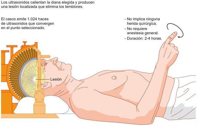Universidad de Navarra , nueva técnica contra el temblor del Parkinson, Universidad de Navarra , nueva técnica contra el temblor del Parkinson, Revista NUVE