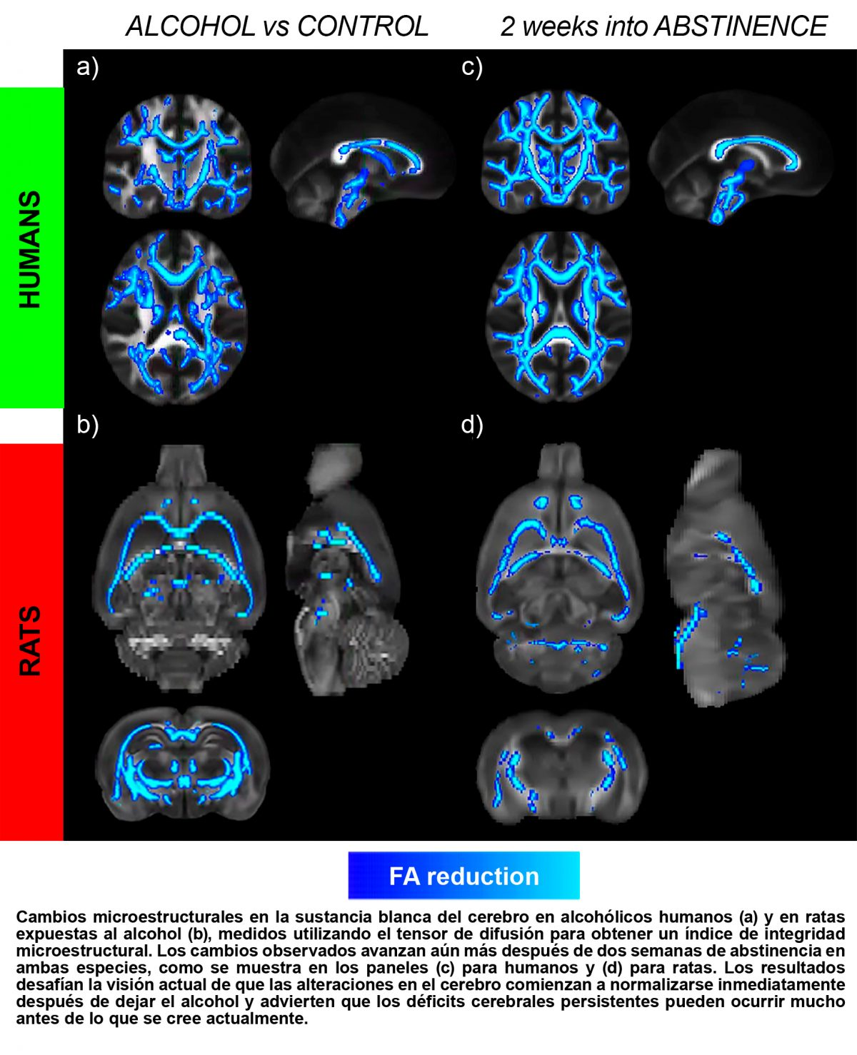 daño cerebral inducido por el alcohol, Daño cerebral inducido por el alcohol, Revista NUVE