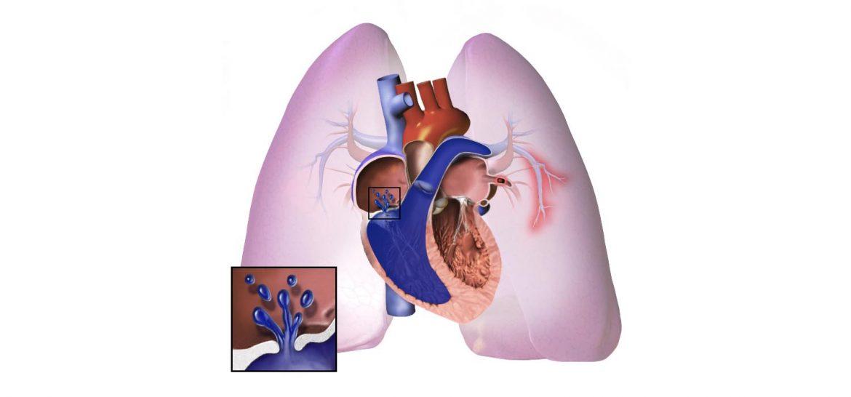 Hipertensión arterial pulmonar hereditaria, Hipertensión arterial pulmonar hereditaria, Revista NUVE