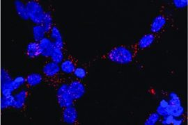 Identifican una posible diana terapéutica para la enfermedad de Kennedy y el cáncer de próstata