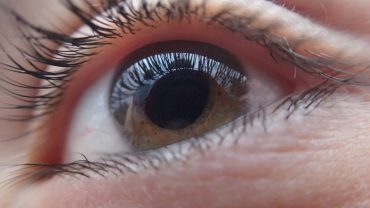 lente intraocular cataratas